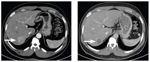 Image on the left: Pre-chemoembolization axial, contrast-enhanced CT scan at the level of the liver. Image on the right: Post-chemoembolization axial, contrast-enhanced CT scan at the same level as the previous image.