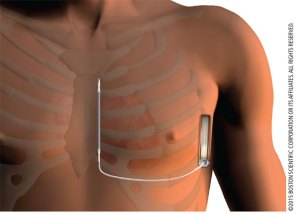 Image of male chest with EMBLEM (TM) S-ICD device implanted.